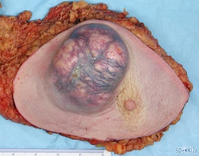 arī krūts vēzis Autors: karote Vēzis