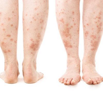 Psoriāze Tā ir hroniska ādas... Autors: babavija Smēķēšanas ietekme uz izskatu.