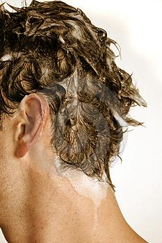 Nepiemērotu ādas īpatnībām... Autors: Forsija Fakti par matiem 2