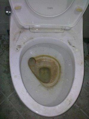 Netīras tualetes pat aiz... Autors: Sinchuks 8 lietas, kas krīt uz nerviem kojās