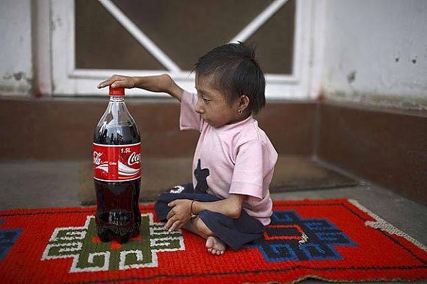 Esmu lielāks par CocaColas... Autors: dunduciene Pasaulē mazākais cilvēks sasniedz pilngadību un meklē s