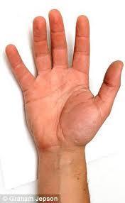 Pirkstu nosaukumi frančiem pus... Autors: BuchxxL Dažādi fakti.