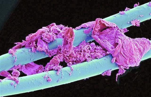 izlietot zobudiegs Autors: Sprinteris Zem Mikroskopa