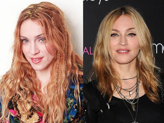 MadonnaMadona ir pop mūzikas... Autors: Lords Lanselots Slavenību plastiskās operācijas - pirms un pēc!