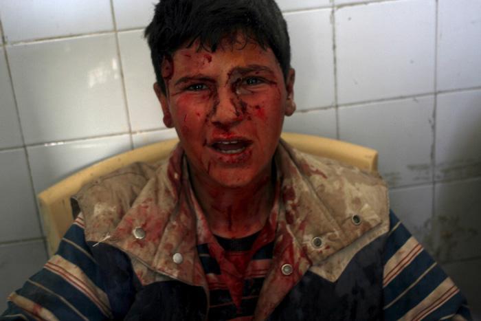 Zēns ievainots pilsētā Ain... Autors: Lords Lanselots Kas liek Sīriešiem bēgt uz Eiropu???