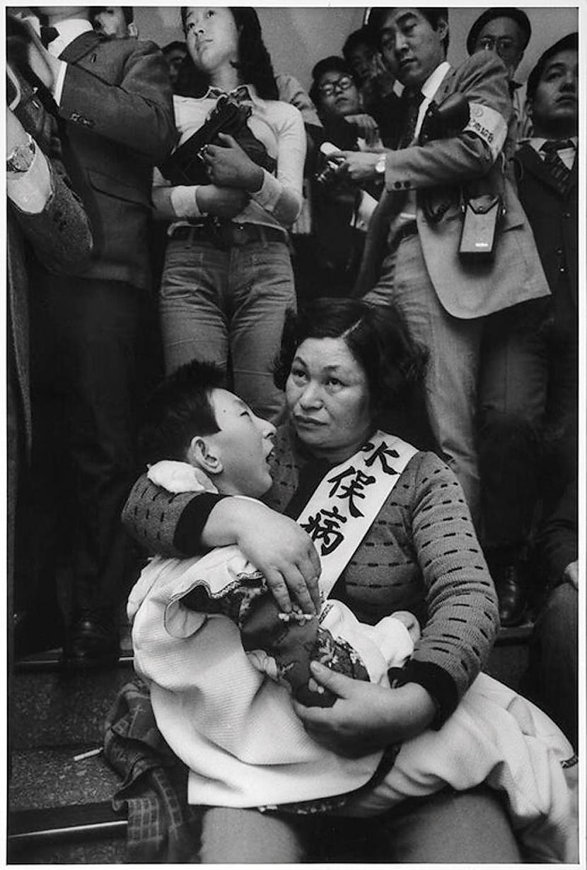 Māte ar paralizētu bērnu Viņam... Autors: Lestets Vēsturiskas bildes, kurām vajag paskaidrojumu