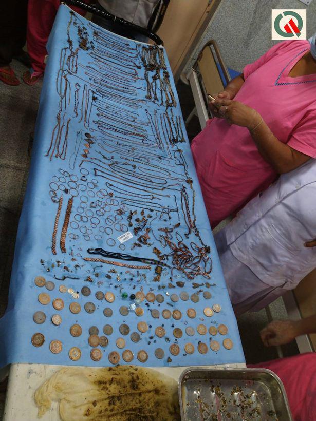 Autors: Fosilija No meitenes izvilka visu juvelierizstrādājumu veikalu - 1,5 kg zelta kuņģī