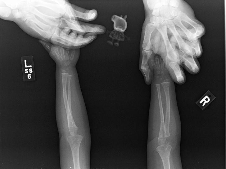laquoMeita atteicās taisīt... Autors: The Diāna 18 forši rentgeni redzesloka paplašināšanai