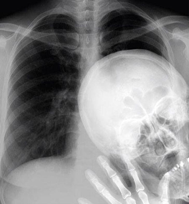 Izbojāt fotogrāfijas protam... Autors: The Diāna 18 forši rentgeni redzesloka paplašināšanai