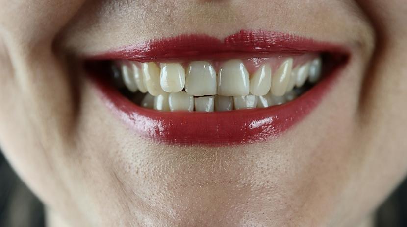 Balti zobi ir veselīguma... Autors: Lestets 10 mīti par ķermeni, kas ir tikuši apgāzti